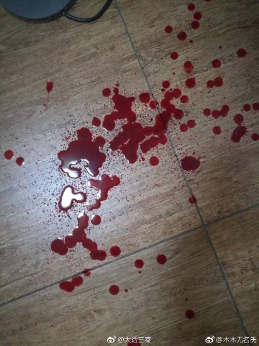 受伤流血的句子 描写流血的句子